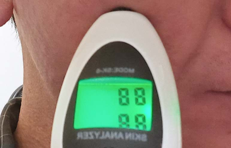 肌の水分量と油分量を測定中